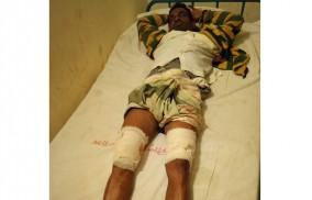 লালমনিরহাটে ইয়াবা সম্রাট বকুল পুলিশের গুলিতে আহত